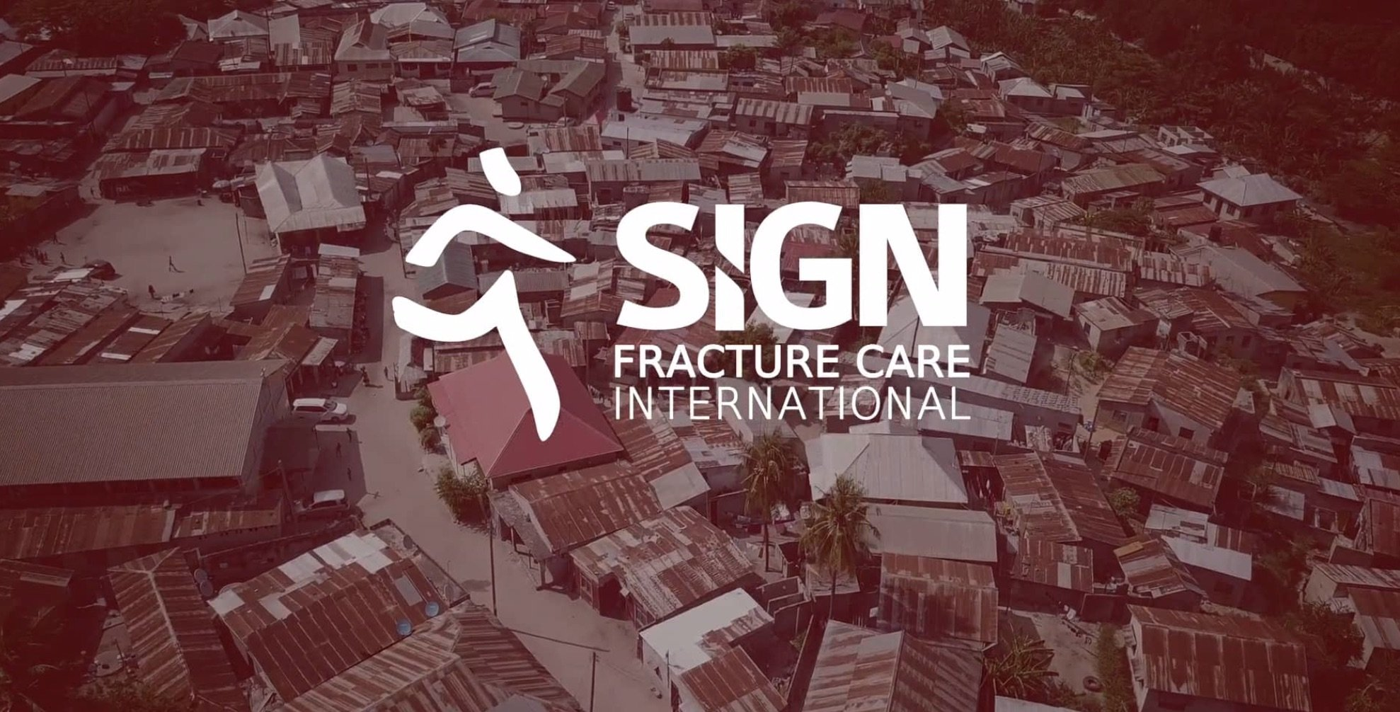 SIGN Fracture Care video production by Dorst MediaWorks